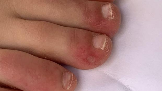 "Wimbledon Times: ""Covid toe"" is a rash that can look like chilblains. Credit: COVID-PIEL STUDY"